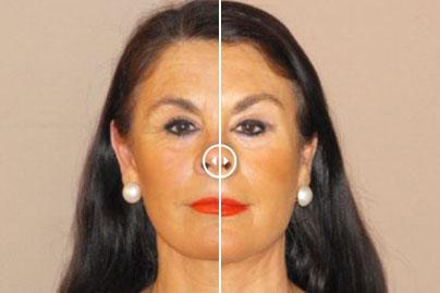 Botox antes y después fotos reales - Marbella Madrid - Ocean Clinic