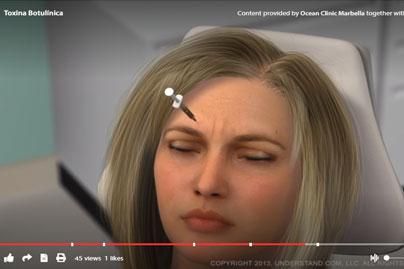 Botox animación en 3D - Marbella Madrid - Ocean Clinic