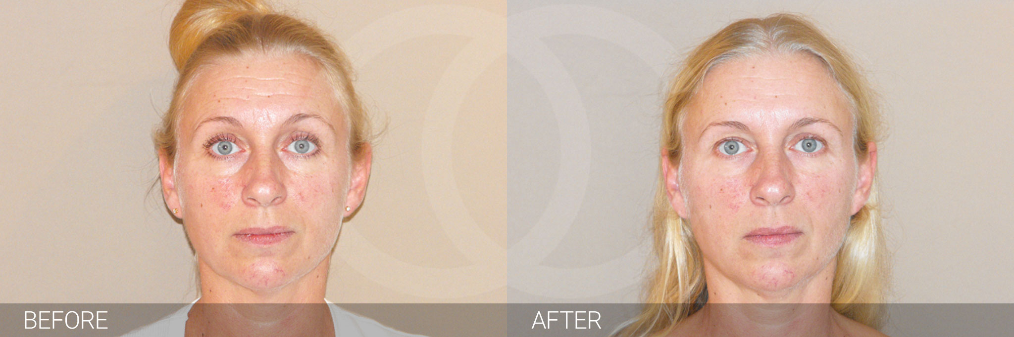 Botox - Botulinum Toxin Non Surgical ante/post-op I
