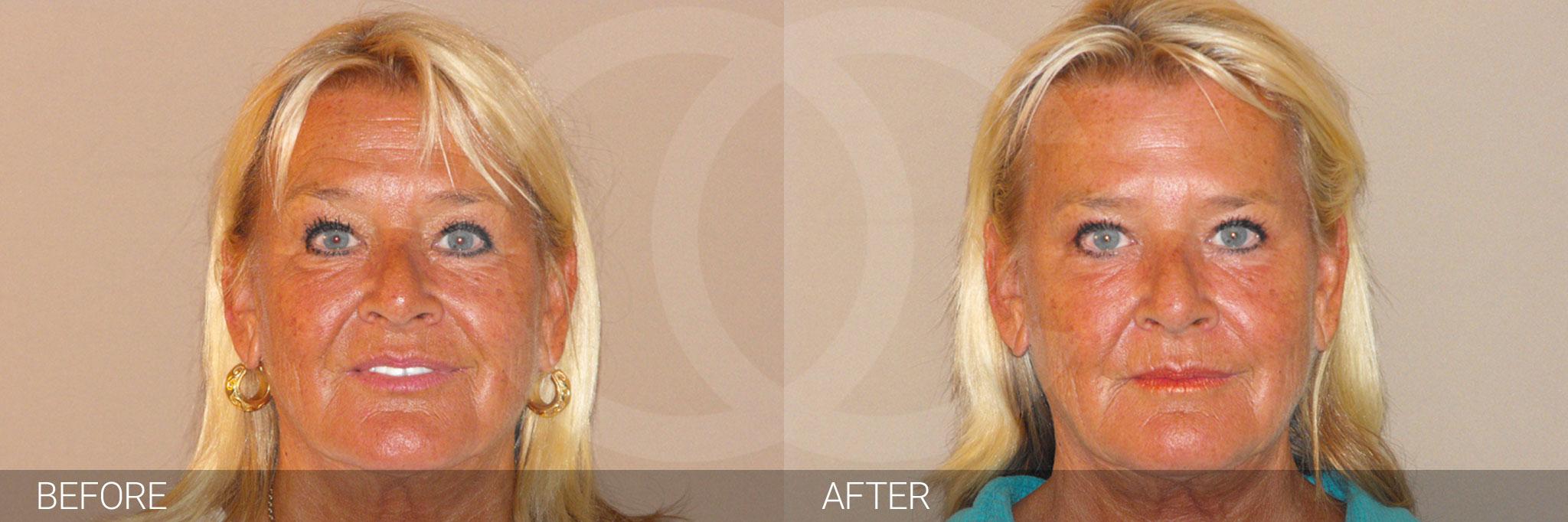 Botox - Botulinum Toxin Rejuvenation ante/post-op I