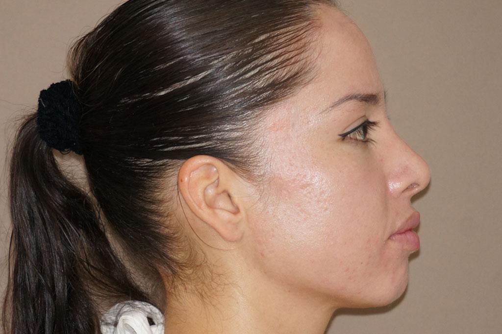 Deep Peeling  before profile