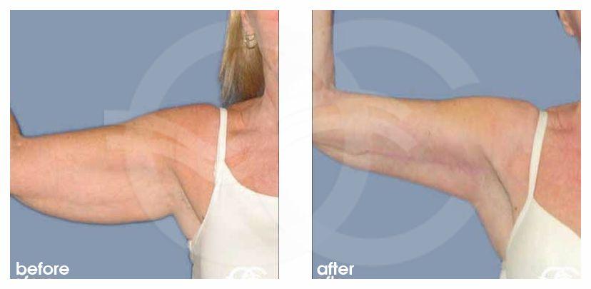 Lifting des bras Ocean Clinic Marbella Espagne