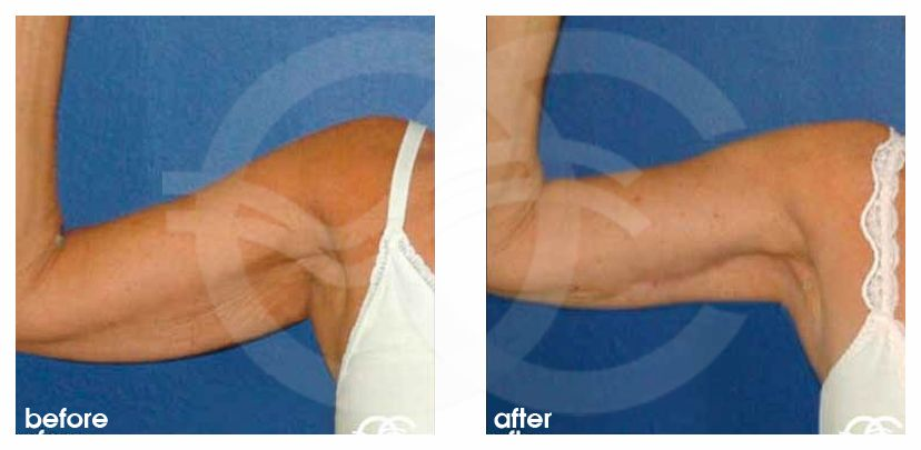 Lifting de brazos Braquioplastia Ocean Clinic Marbella Málaga