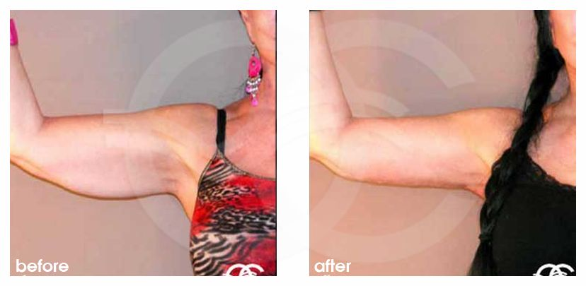 Armlift Before After Photo Ocean Clinic Marbella Spain