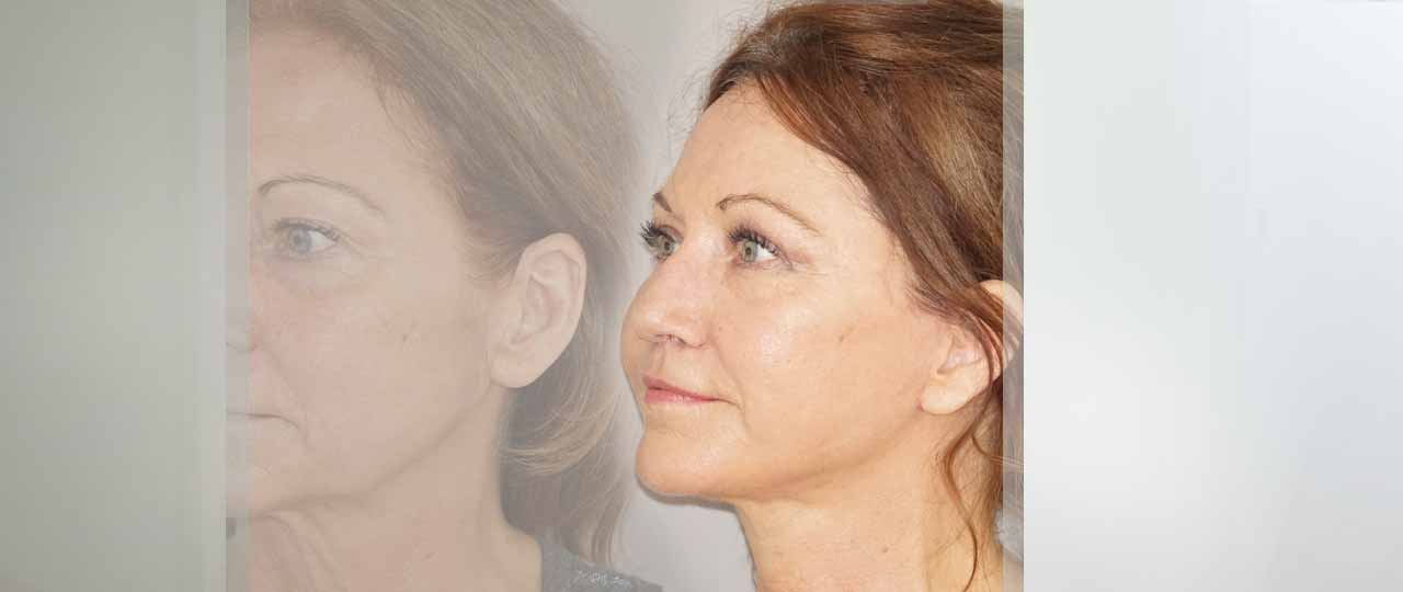 Photo Gallery Before and After Plastic Surgery Ocean Clinic Marbella Spain