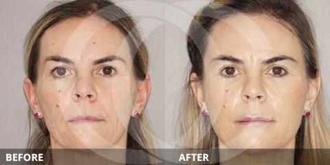 Anti-aging - Best for restoring volume: Fat transfer or fillers