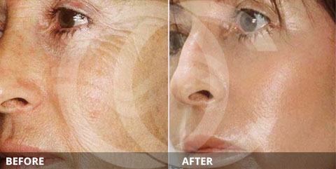 Anti-aging - Best for treating sun damage: Chemical peel