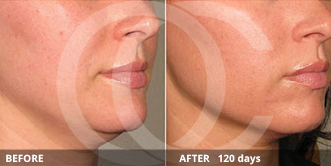 Anti-aging - Best for skin tightening: Ultherapy