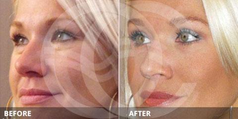 Anti-aging - Best for rejuvenation of eye area: Eyelid surgery
