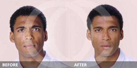 Anti-aging - Best for wrinkles: Botox