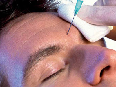 Botox For Men - Your Questions Answered