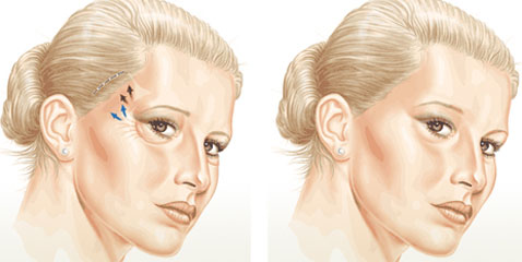 How are brow lift and blepharoplasty surgery carried out?