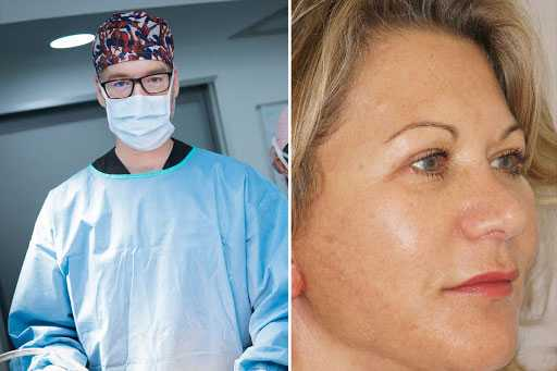 Lateral Brow Lift and Upper Blepharoplasty