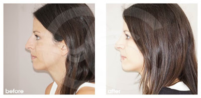 Why is traditional rhinoplasty usually the best option for fixing a dorsal hump?