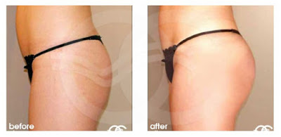 Buttock augmentation is always a high risk surgery