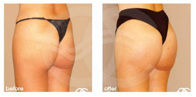 You'll ruin your results if you gain/lose weight buttock augmentation