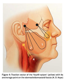 Verbesserung der Narbenbildung bei Facelift-Operation