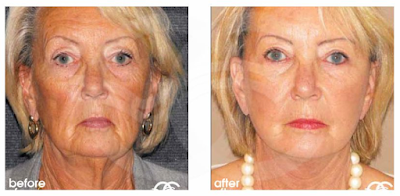 Facelift-Chirurgie: Ihre Fragen beantwortet