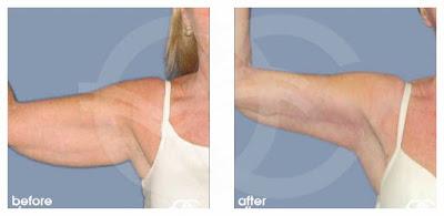 Wird eine Brachioplastik «crepey skin» an meinen Oberarmen beseitigen?