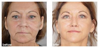 Behandlung von hohlen Augen