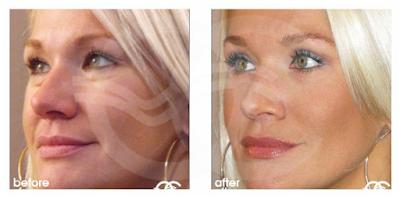 Gut aussehen: Behandlungen zur Verjüngung Ihrer Augen