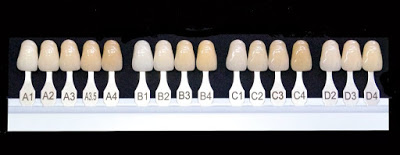 Understanding why your teeth are discoloured