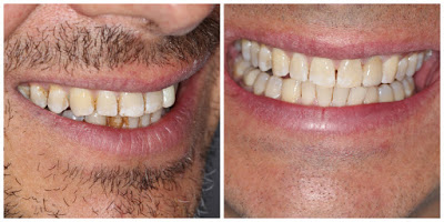 Whitening is not a magic wand