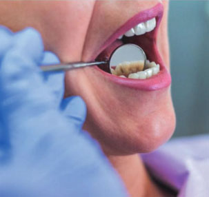 Why Dental Treatment - Cosmetic Dentistry