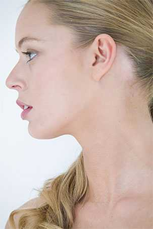 Earlobe Rejuvenation Surgery for Ageing Ears