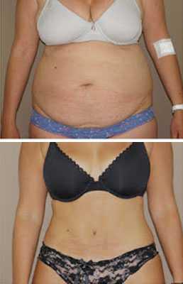 Abdominoplastia tradicional con la lipoescultura