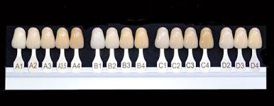 Entender por qué sus dientes están descoloridos
