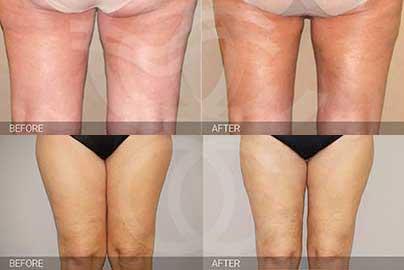 celulitis - antes y después
