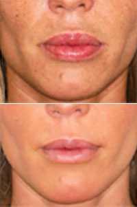 Corregir los problemas de los rellenos de labios permanentes