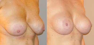 ¿Está descontenta con su implante de mamas?