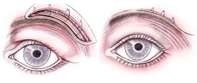 Lifting de cejas: Quirúrgico vs No Quirúrgico