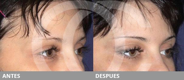 Botox o lifting de cejas