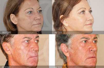 ¿Qué hace diferente al lifting facial PAVE de otros procedimientos?