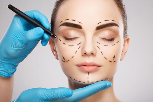 Lifting facial a los 40 - Cirugía facial