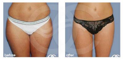 Preguntas frecuentes sobre la liposucción