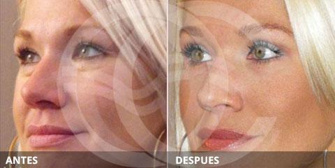 Antiaging: Lo mejor para el rejuvenecimiento del área de los ojos: Cirugía de párpados (Blefaroplastia)