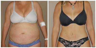 Mommy Makeover antes y después photo