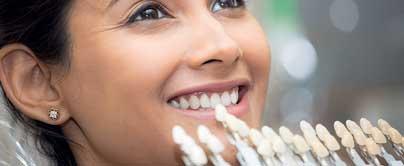 ortodoncia combinada con carillas de porcelana