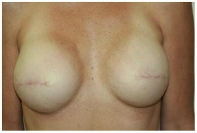 Reconstrucción mamaria – Conozca sus opiniones