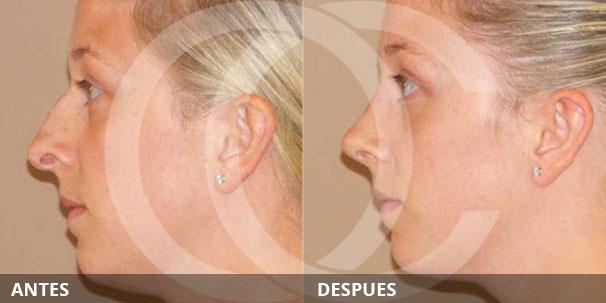 Cómo arreglar la protuberancia de la nariz - ANTES Y DESPUÉS