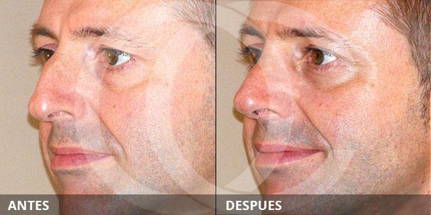 ¿Puedo arreglar la protuberancia de mi nariz sin cirugía? ANTES Y DESPUÉS