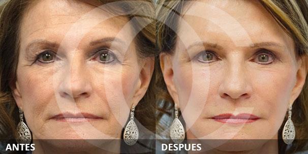 Transferencia de Grasa - Una alternativa al lifting facial no quirúrgico
