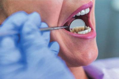 Tratamiento Dental - Estética Dental
