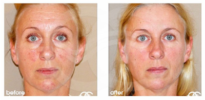 Rejuvenecimiento facial - Arrugas | Tratamientos estéticos avanzados