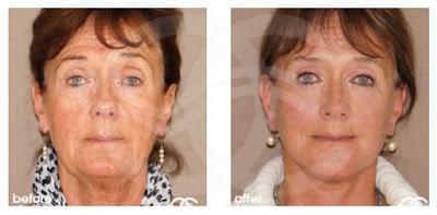 Rejuvenecimiento facial - apariencia de flacidez | Tratamientos estéticos avanzados