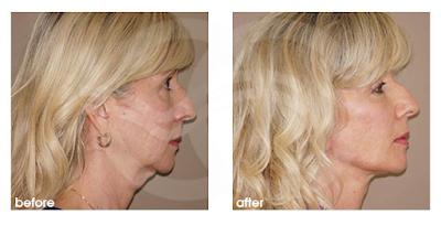 Rejuvenecimiento facial - El cuello de pavo | Tratamientos estéticos avanzados